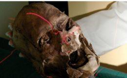 Le crâne identifié comme étant celui d'Henri IV par Philippe Charlier. (Photo DR)